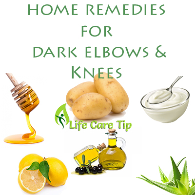 dark elbows and knees natural remedies