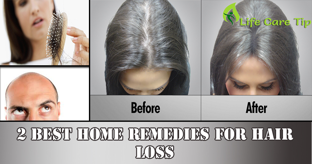19 Most Popular Ways You Can Learn More About Hair Loss Treatment At Home Israel