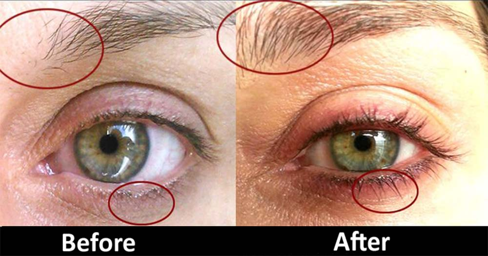 How to naturally grow eyelashes long overnight