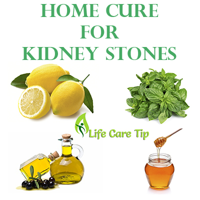 How To Treat Kidney Stones Natural Way