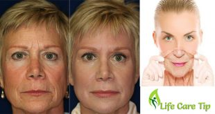 treat wrinkles at home
