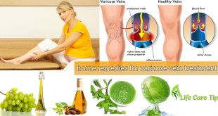 remedies for varicose vein