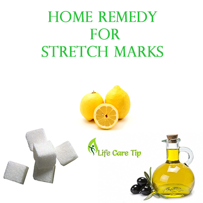 Any Natural Ways To Get Rid Of Stretch Marks