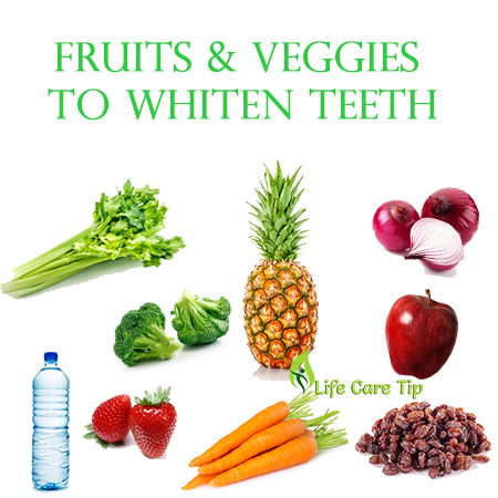 Top foods for your teeth