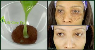 Remedy for Dark Circles, Eye Wrinkles and Puffy Eyes Cure