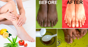 remove tan from feet
