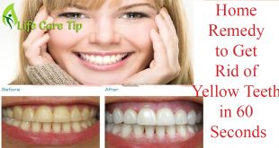 get rid of yellow teeth in 60 seconds