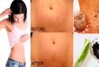 How to Get Rid of Stretch Marks With Coffee