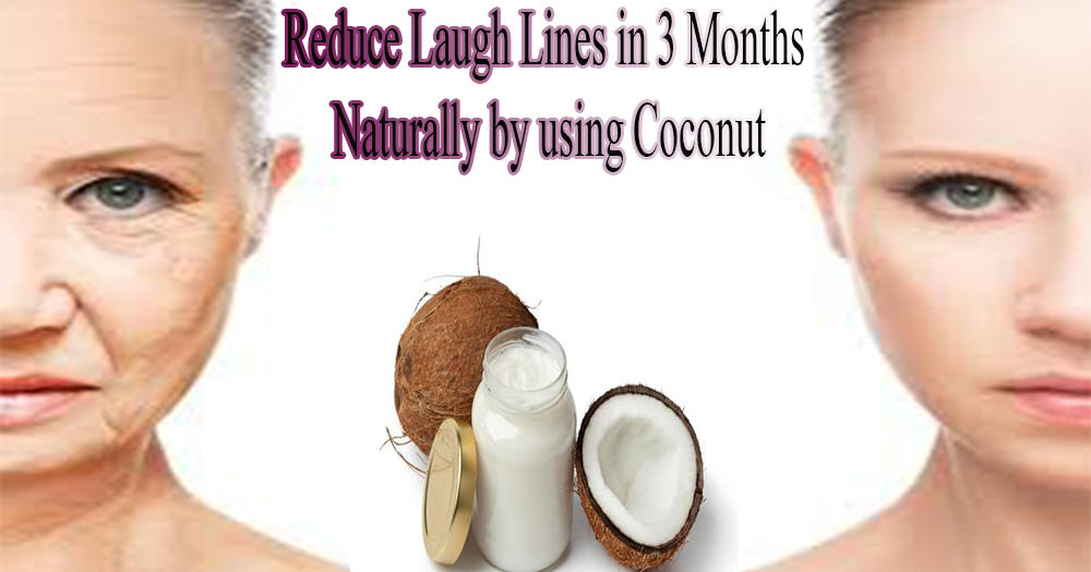 Get Rid Laugh Lines Around Mouth Naturally