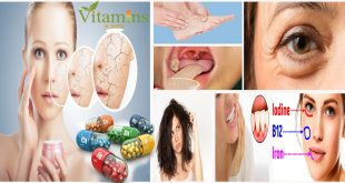 Signs You Need More Vitamins in Your Diet to Stay Healthy