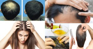 Simple remedy to stop baldness and regrow hair naturally