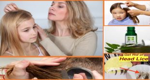 Best At Home Remedies to Get Rid of Head Lice Easily
