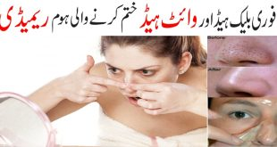 How to Remove Blackheads Naturally and Easily
