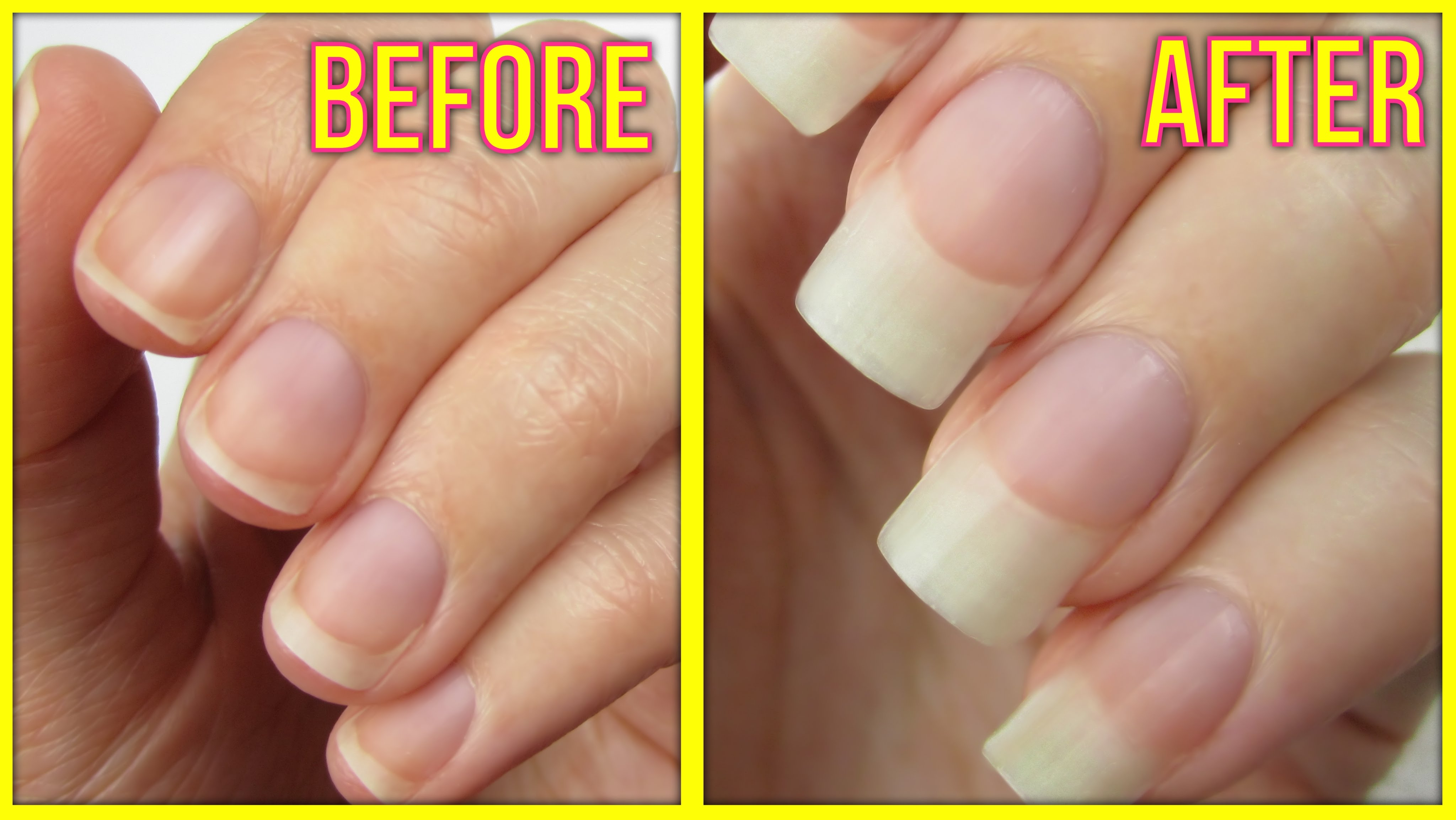 How to Grow Nails Fast and Naturally in 10 Days – Life Care Tips