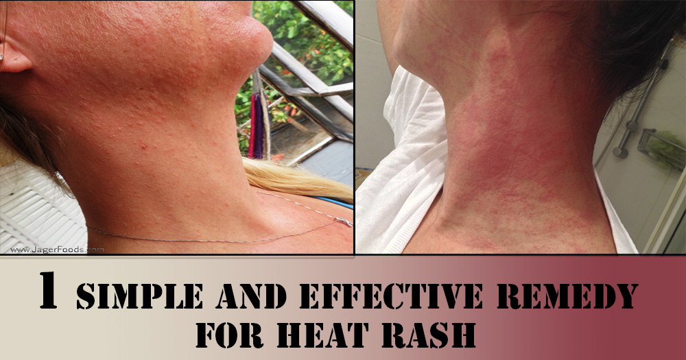 Home Remedies For Rashes On Genital Areas