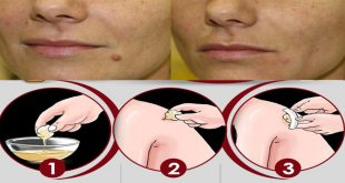 Best Home Remedies to get rid of moles
