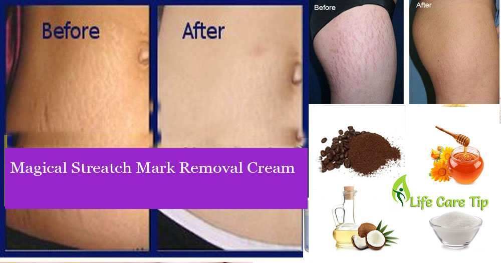 How To Get Rid Of Pregnancy Stretch Marks Naturally