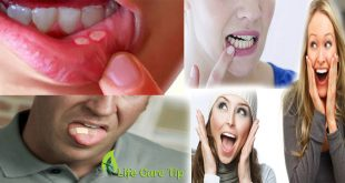 Get rid of Mouth Canker Sores in One Day
