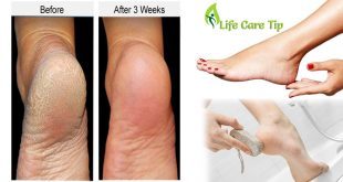 Heal Cracked Heels at Home