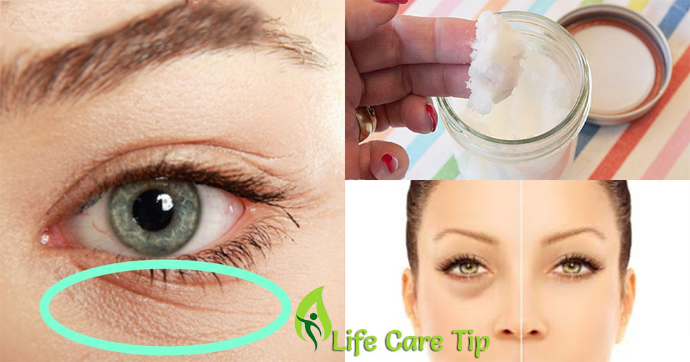 Best Way To Get Rid Of Under Eye Wrinkles Naturally