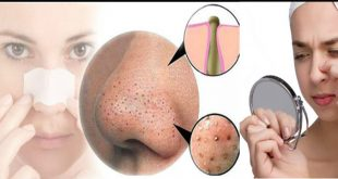 How to Get Rid of Blackheads, Acne Scars and Blemishes easily