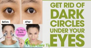 Remove Dark Circles under Eyes to Get Sparkling Eyes