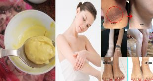 Top 3 Home Remedies for Skin Whitening