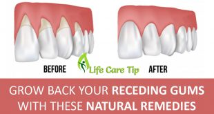 2 Easy Remedies to Treat Gum Diseases At Home Naturally
