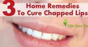 3 Easy Home Remedies to Get Rid of Cracked Lips