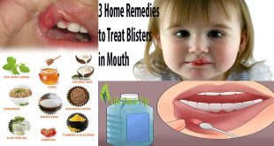 treat blisters in mouth