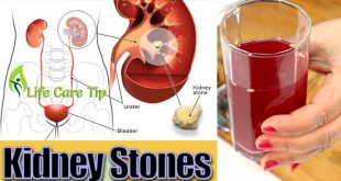 How to get rid of Kidney Stones by taking miracle drink