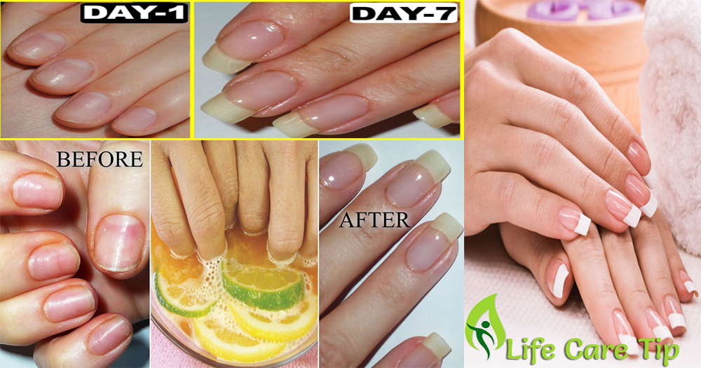 How Do You Make Your Nails Grow Faster Naturally