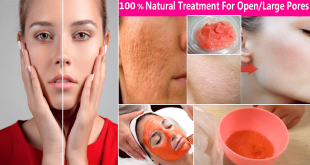 Natural Treatment to Get Rid of Large Open Pores