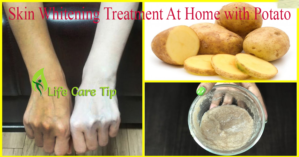 Skin Whitening Treatment At Home With Potato To Get White