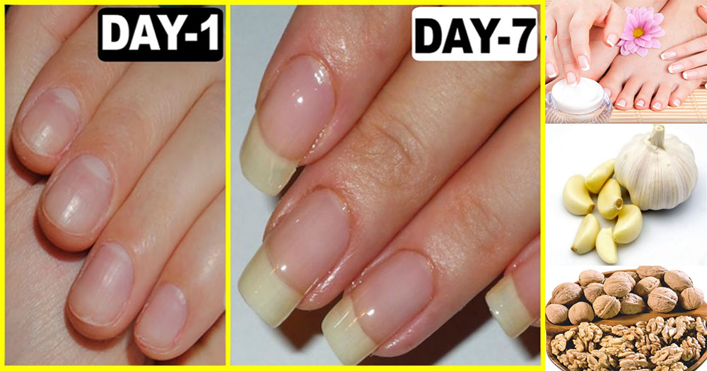 how to get nails to grow faster