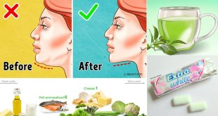 ways to get rid of a double chin naturally