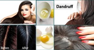 Home Remedies to Get Rid of Dandruff Naturally & Easily