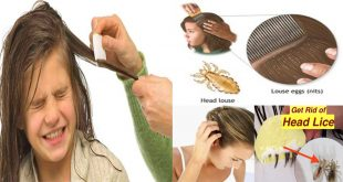 get rid of head lice naturally in three minutes only
