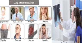 Early Symptoms of Lung Cancer You Don't Know About
