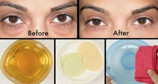 Home Remedies to Get Rid of Swollen Puffy Eyes & Dark Circles Naturally Fast