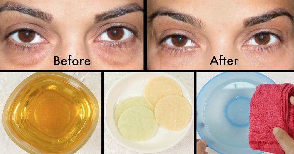 How To Get Rid Of Dark Circles Naturally At Home