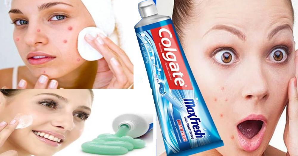 how to clear acne with toothpaste