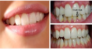How to Remove Plaque and Tartar from Teeth At Home Fast & Easily