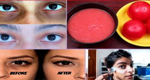 Home Remedies to Treat Dark Circles Overnight