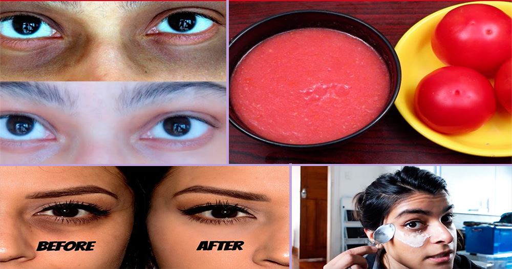 how to get rid of dark circles overnight