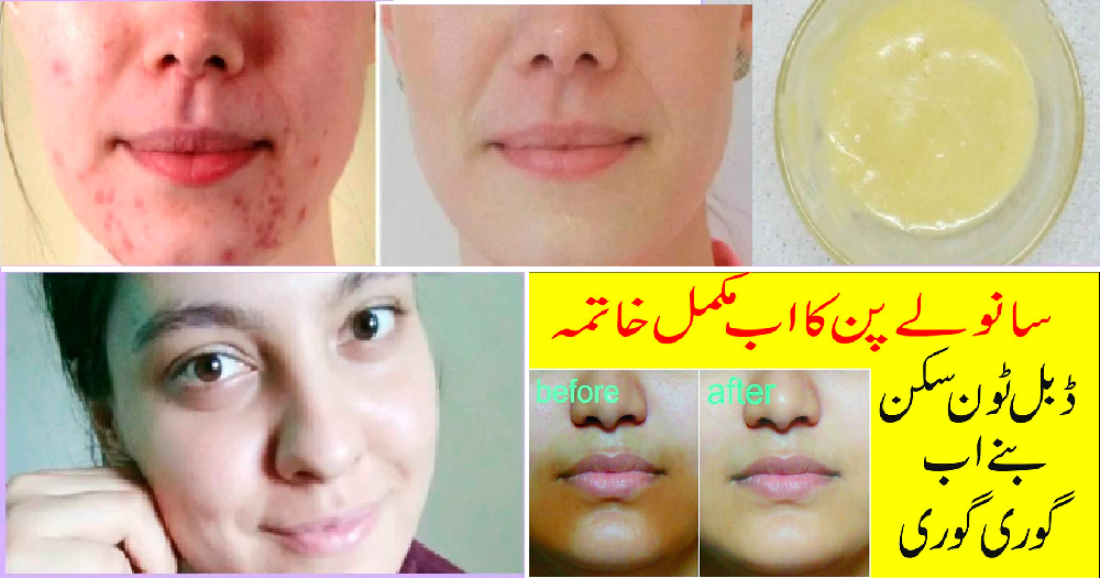 An-Amazing-Home-Remedy-to-Cure-Uneven-Skin-Tone-Fast