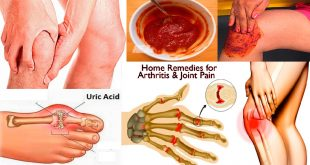 Effective Home Remedies for Arthritis Cure Fast