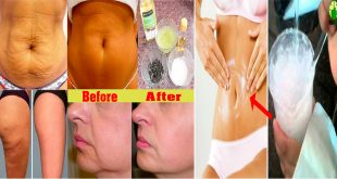 How to Make Skin Tightening Oil at Home for Tight & Toned Skin