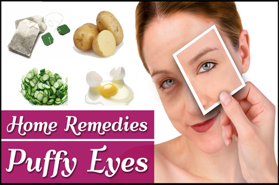 Best Homemade Remedies to Treat Puffy Eyes Fast
