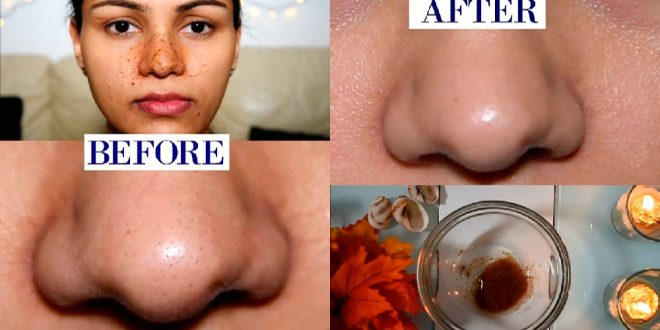 Blackheads Removal at Home with Barley Flour & Rosewater in 15 Days